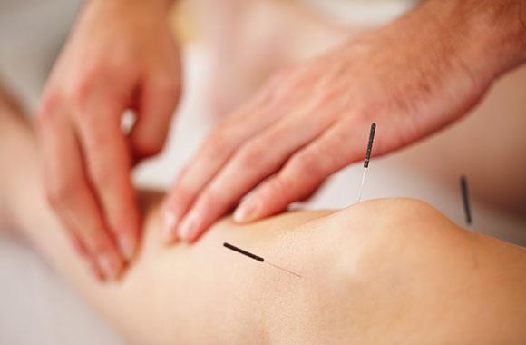 Akupunktur bei Schmerzen der Bänder und Sehnen