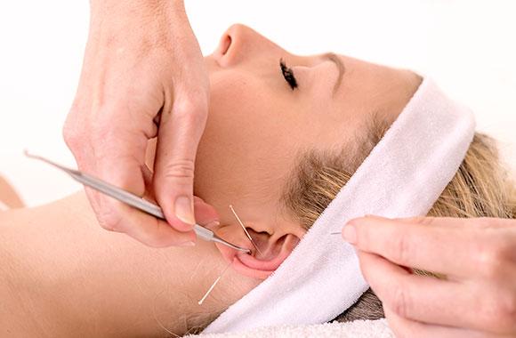 Akupunkturbehandlung des Ohres